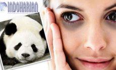 Permalink to Istilah Mata Panda Hingga Penyebab Dan Solusinya!